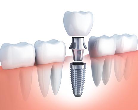 Image result for implant restoration