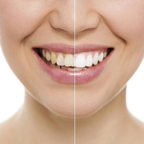 Teeth whitening treatment at Pollard Family Dentistry