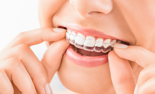 Bruxism and mouthguards at Pollard Family Dentistry